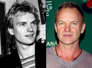 Age shall not wither him: even so, it's time that Sting became Gordon